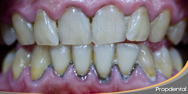 prevención del sarro dental