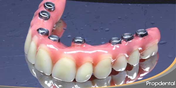protesis-en-molares