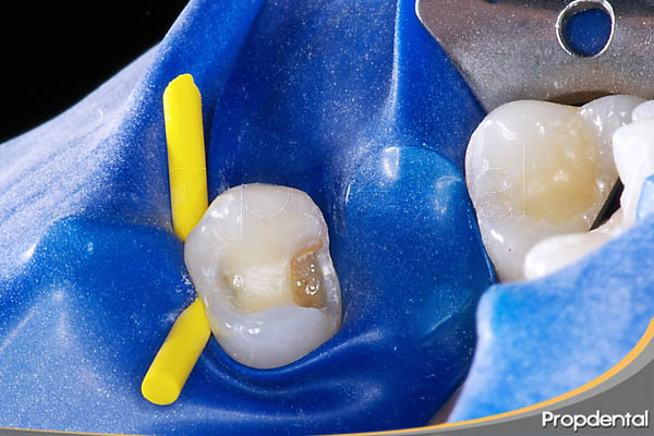 restauración diente cariado