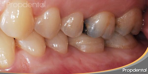 restauración después de la endodoncia