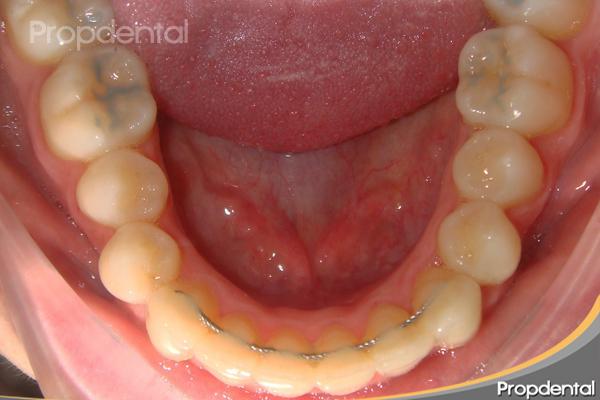 retenedor lingual de ortodoncia