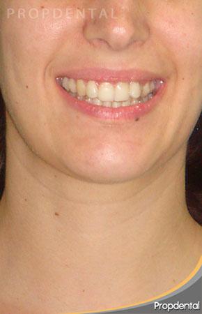 sonrisa alineadores transparentes boca