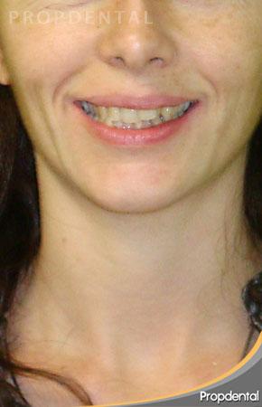 sonrisa antes del invisalign