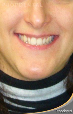 sonrisa antes