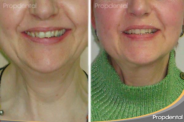sonrisa de la paciente antes y después