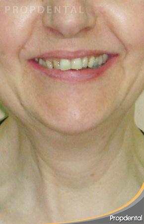 sonrisa paciente antes de la ortodoncia