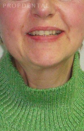 sonrisa pacientes después ortodoncia
