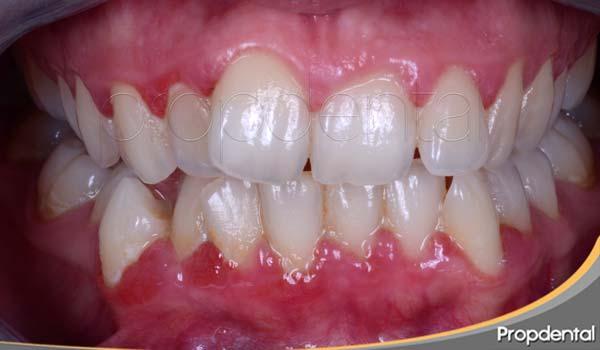 tipos de gingivitis