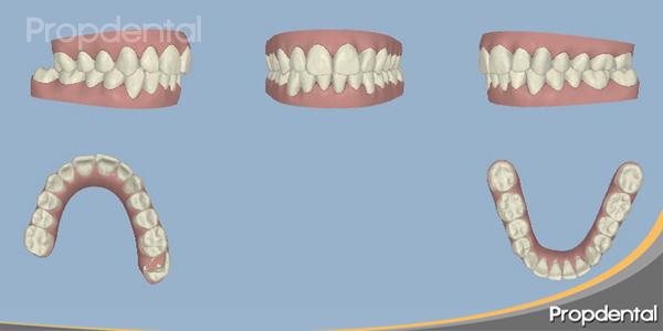 tratamiento ortodoncia invisible por ordenador