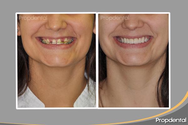 zirconio antes y después