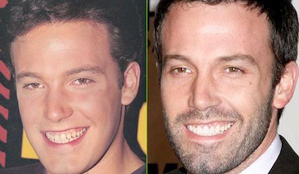 Ben Affleck dientes antes y después