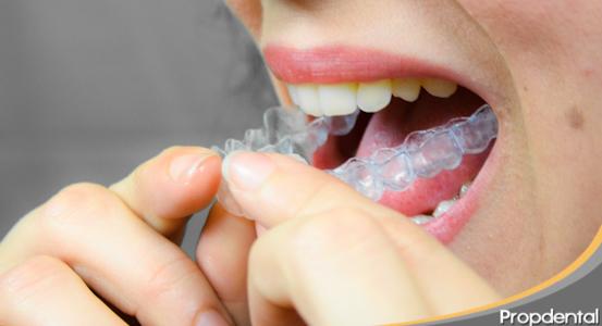 Quitar los dientes torcidos y poner implantes