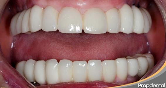 adaptacion protesis dentales
