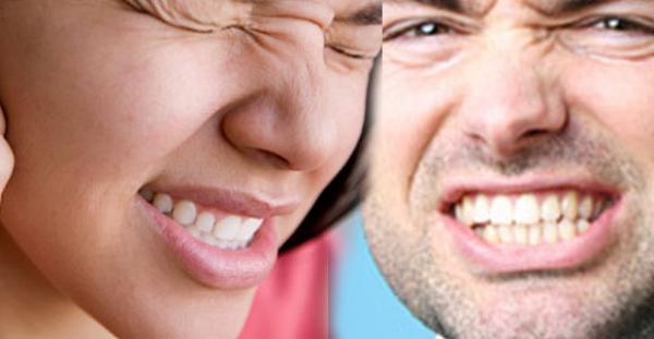 apretamiento dental
