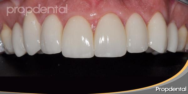 carillas dentales Barcelona en Propdental