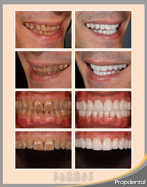 caso clínico de carillas dentales en propdental