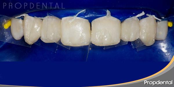 caso clinico carillas de composite