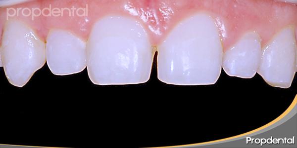 caso clínico de espacio entre los dientes