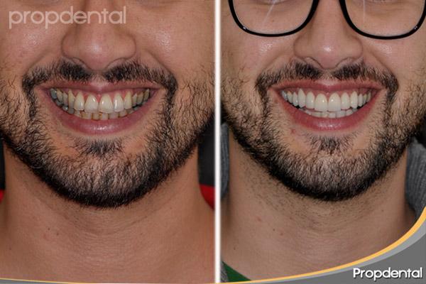 caso clínico de estética dental en Barcelona