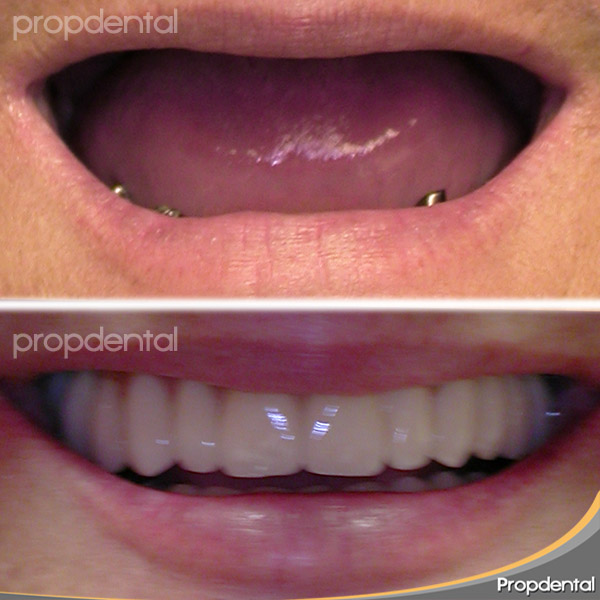 caso clinico prótesis metal porcelana sobre implantes