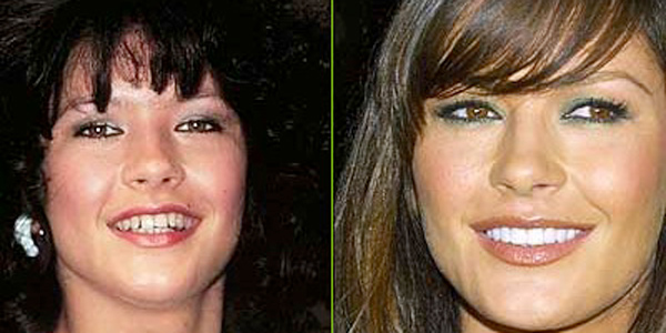 catherine zetta jones dientes antes y después