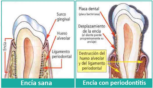 consecuencias de la placa dental
