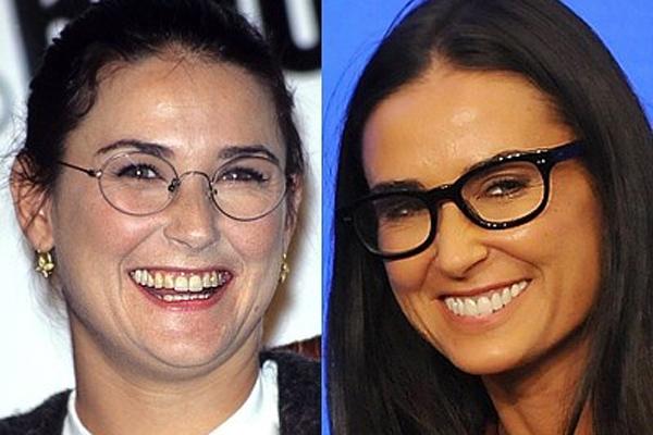Demi Moore y su estética dental