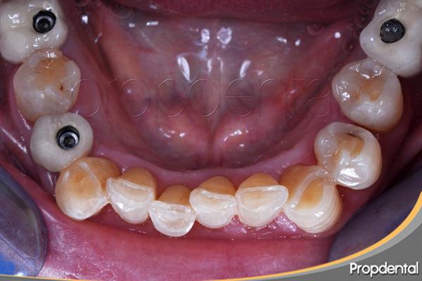 desgaste dental por apretar los dientes