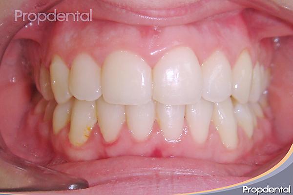 dientes corregidos