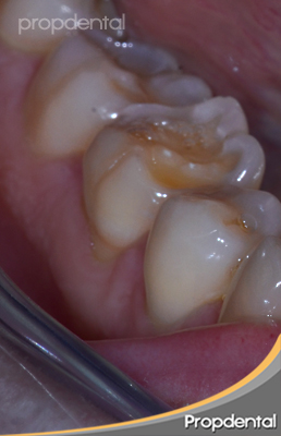 dientes desgastados por apretar o rechinar