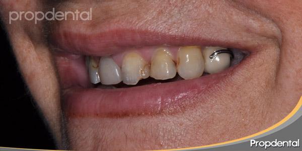 dientes inestéticos