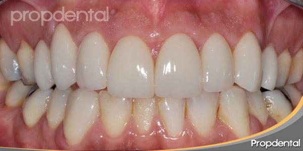 dientes perfectos