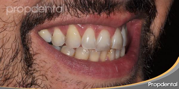 dientes primer cuadrante