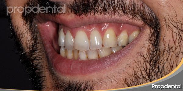 dientes segundo cuadrante