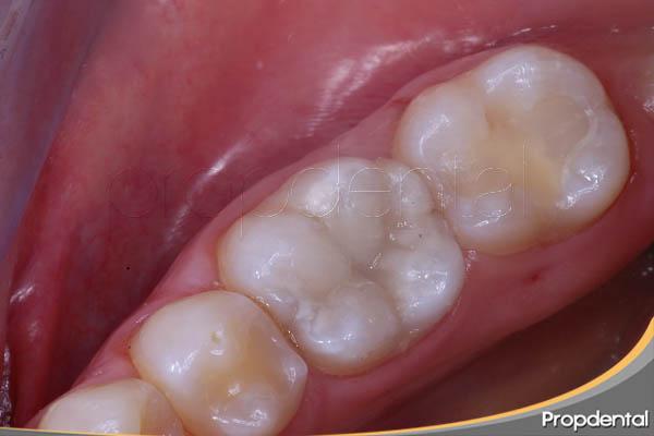 empaste de composite de un molar