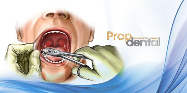 extracciones previas a ortodoncia2