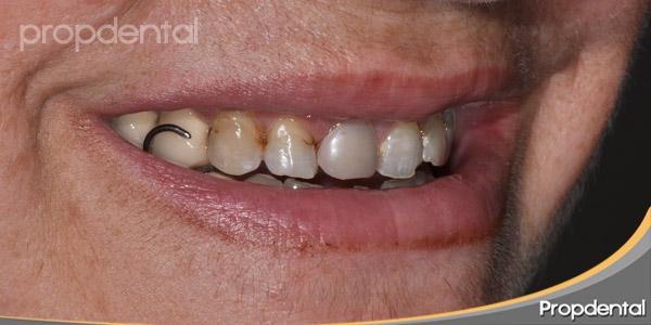 gancho de la dentadura postiza