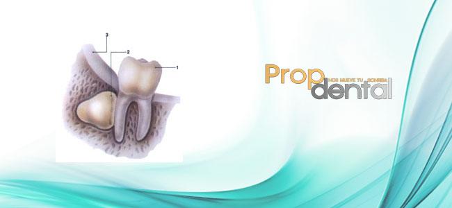 inclusion dentaria2