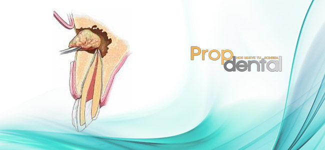 indicaciones de la cirugia endodontica2