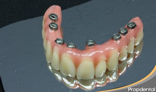 me tengo que poner protesis sobre implantes