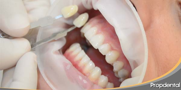 microabrasion dental