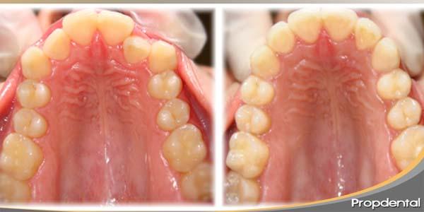 mordida inversa y la ausencia de un molar