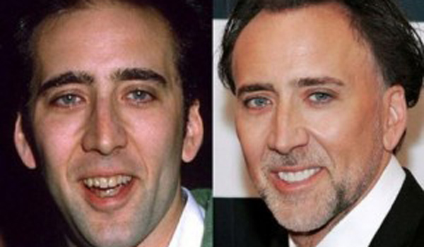 Nicolas Cage sonrisa de Hollywood