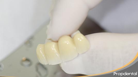 no estoy comoda con los puentes dentales
