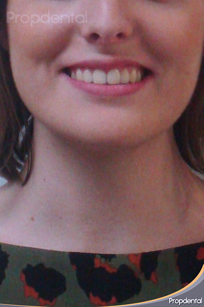 ortodoncia propdental