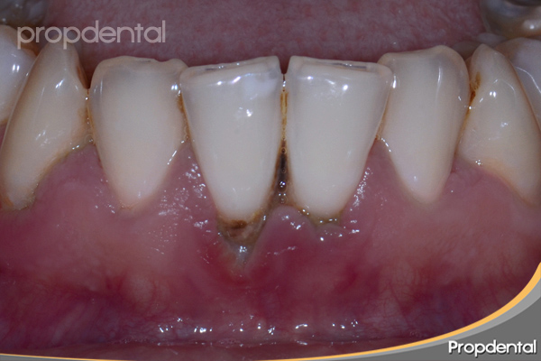 placa dental bacteriana calcificada