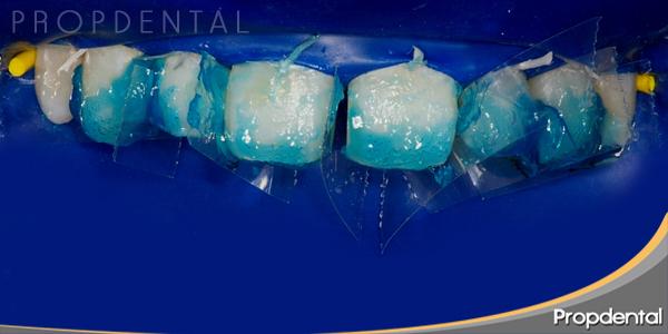 preparación del diente con ácido fluorídrico