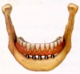 prótesis de toronto