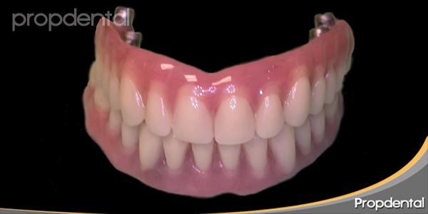 prótesis híbridas sobre implantes dentales