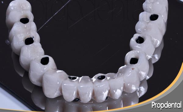 prótesis metal porcelana sobre implantes